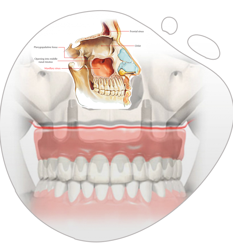 https://www.magizhchidental.in/wp-content/uploads/2021/02/Zygoma-img.png