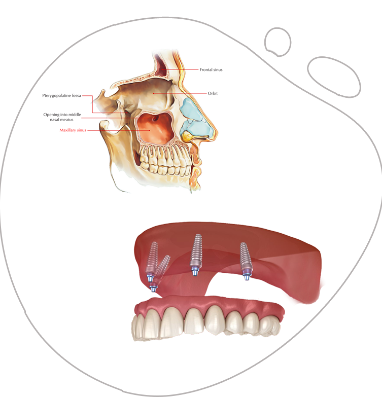https://www.magizhchidental.in/wp-content/uploads/2021/02/all-on-4.png