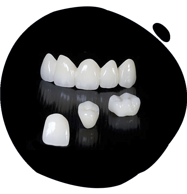 https://www.magizhchidental.in/wp-content/uploads/2021/02/crown-1.png