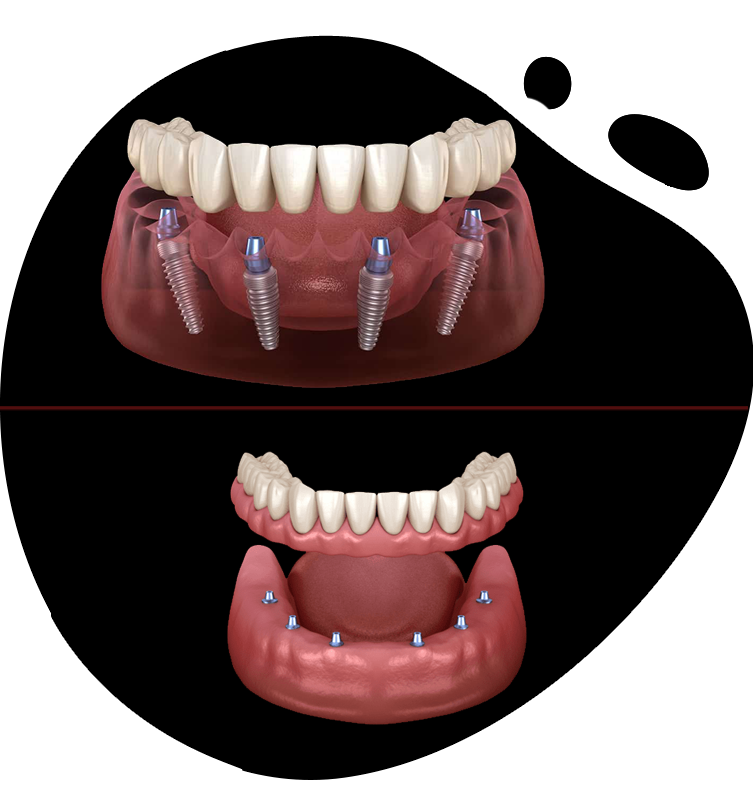 https://www.magizhchidental.in/wp-content/uploads/2021/02/dd-img-3.png