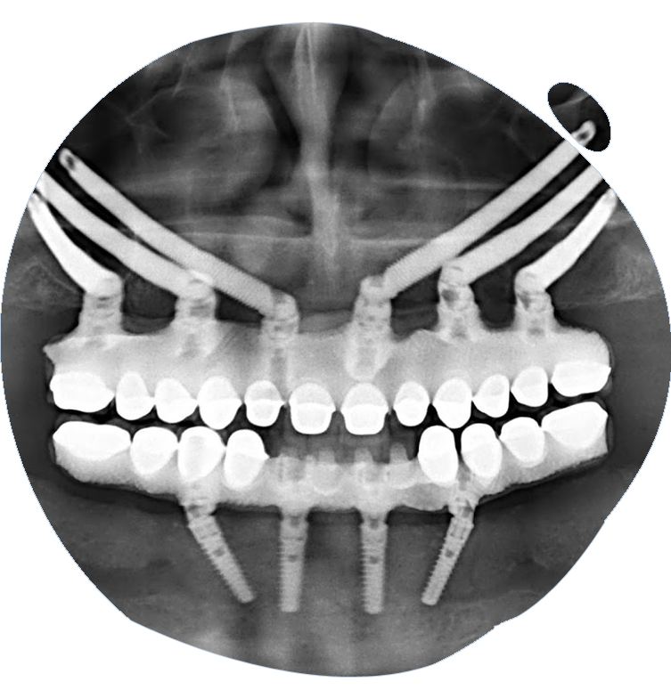 https://www.magizhchidental.in/wp-content/uploads/2021/02/dd-img-4.png