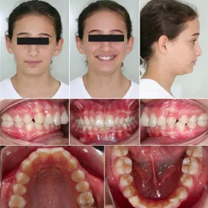 https://www.magizhchidental.in/wp-content/uploads/2021/02/invis-1.png