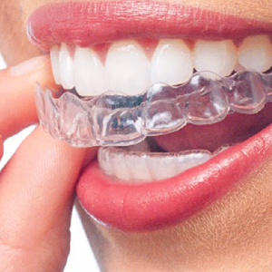 One week to ten days after the trial fit. Patient need not be present. The clear aligners can be shipped to you place.