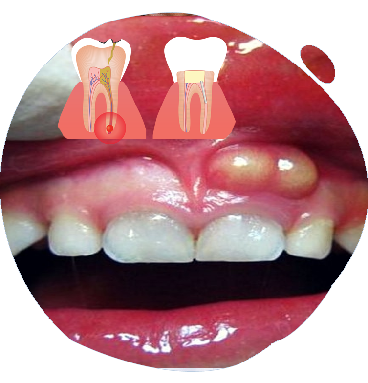 https://www.magizhchidental.in/wp-content/uploads/2021/02/root-canal-1.png